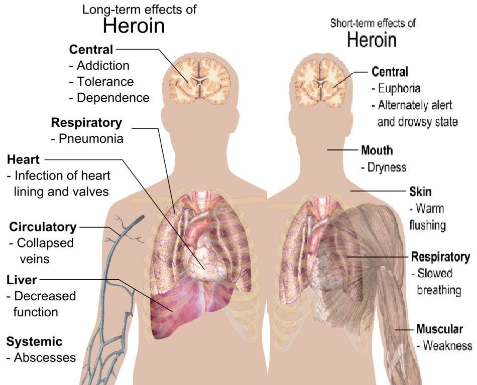 long-term effects of heroin