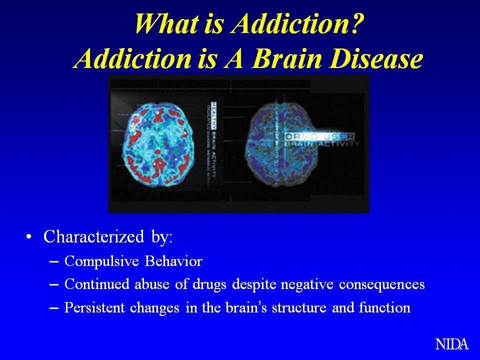 addiction is a brain disease